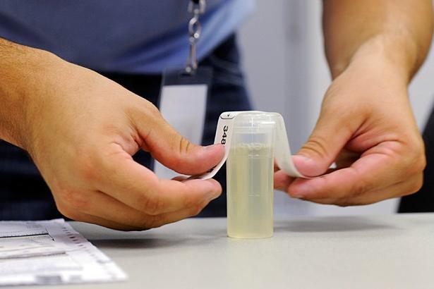 Post-Accident Drug Test